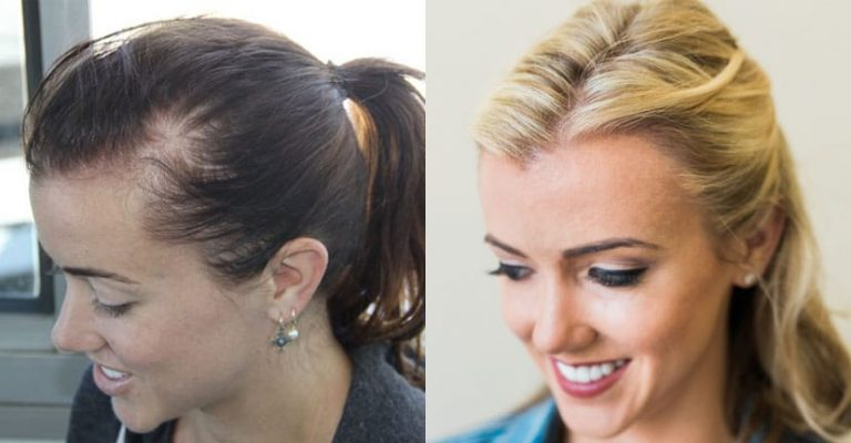 Female Hair Transplant Reviews | hair loss treatment Female