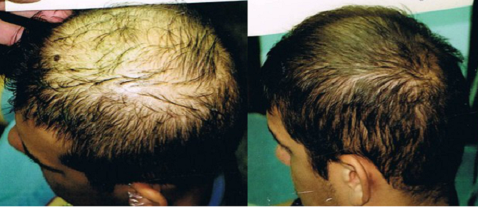 Top 10 Best Reasons to Get Hair Transplant