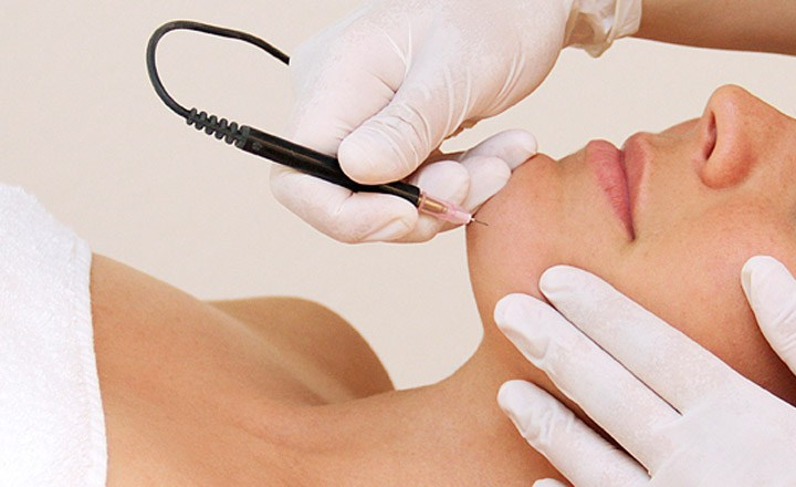 5 Myths About Electrolysis Hair Removal, Debunked
