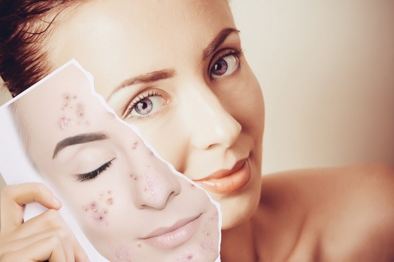 7 Effective Skin Care Tips to prevent Acne