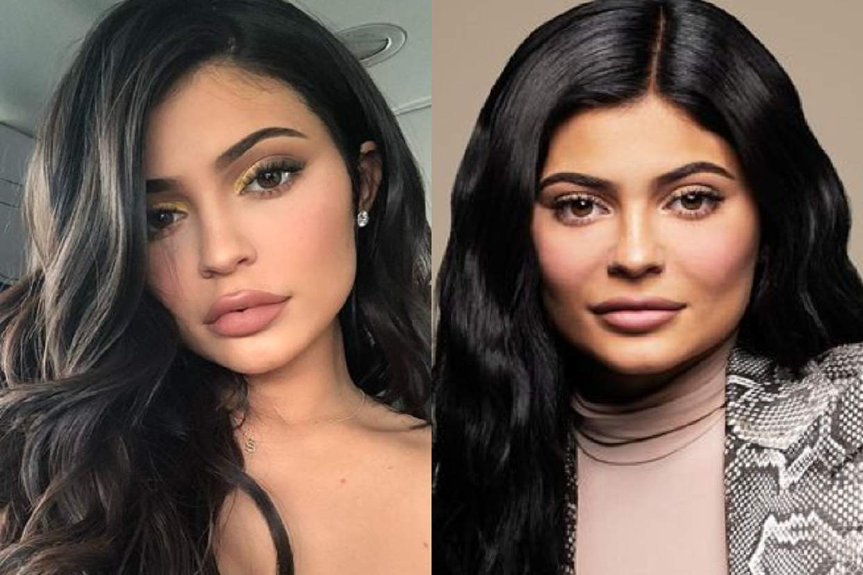 New Plastic Surgery Trend