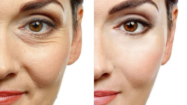 What is the cost of Botox therapy?