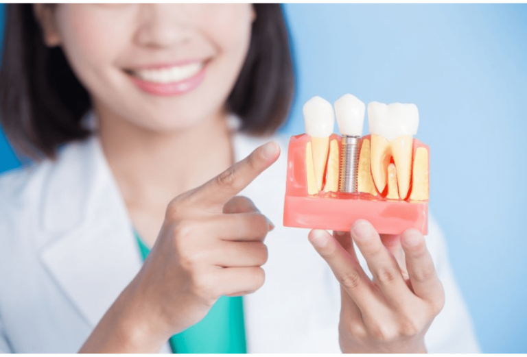 5 Excellent Reasons to Invest in Dental Health Care