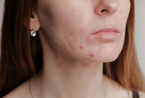 Rid of Pestering Acne