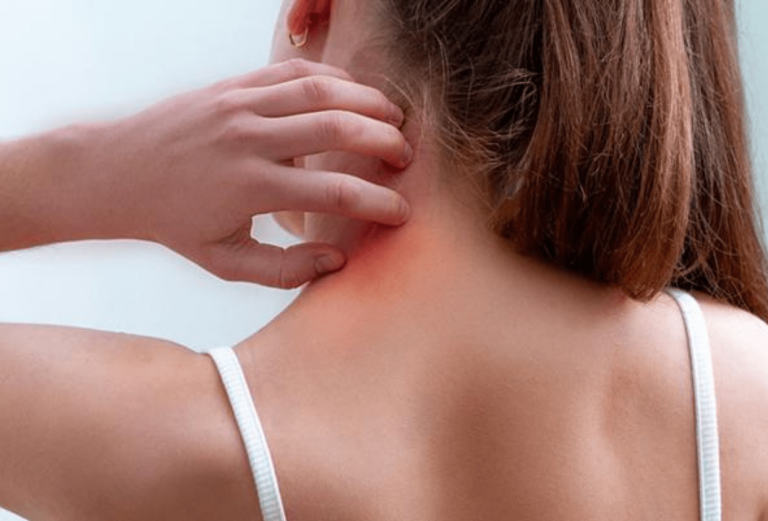 Red Light Therapy for Eczema: Fluke or Effective?